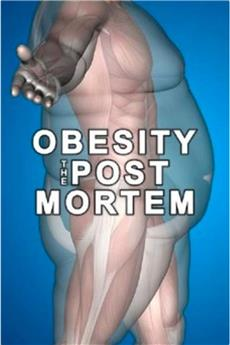 Obesity: The Post Mortem (2016) 1080p download